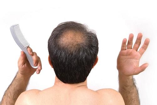 Tăng nguy cơ trầm cảm ở nam giới trẻ khi sử dụng thuốc trị hói đầu